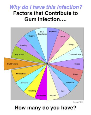 Charlotte dentist Dr. Bill Linger treats gum disease.