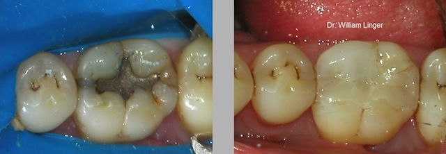 Tooth colored composite dental fillings with Charlotte dentist Dr. William Linger.