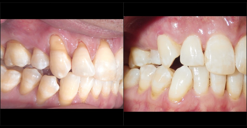 Pinhole Surgery by William Linger, DDS, MAGD