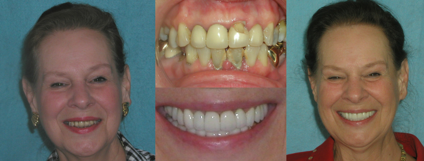 Dental Crowns by Dr. Linger