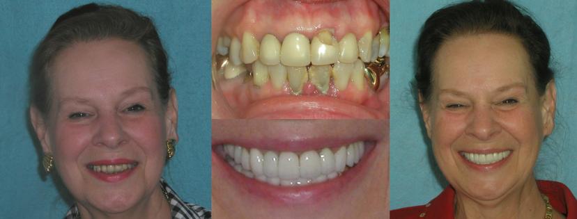 Dental Crowns by Dr. Linger
