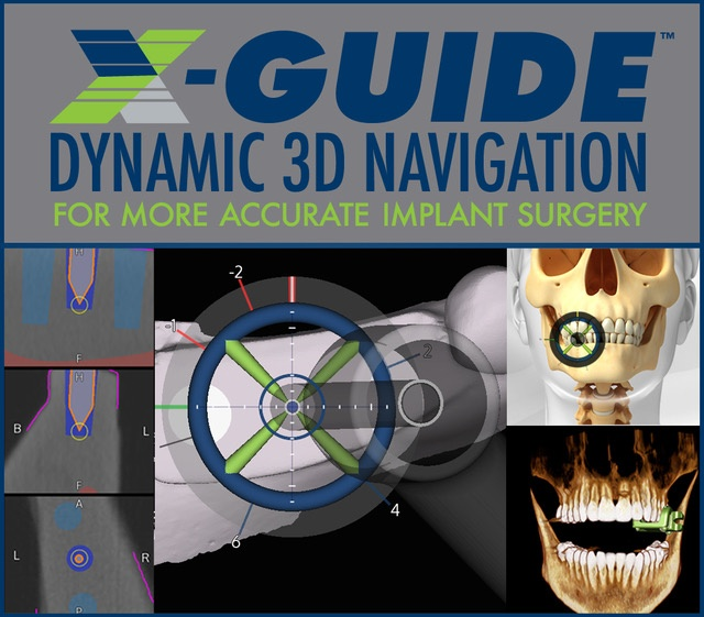 X-Guide guided dental implants
