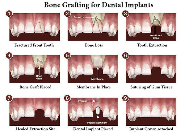 Bone Grafting William Linger Dds Magd