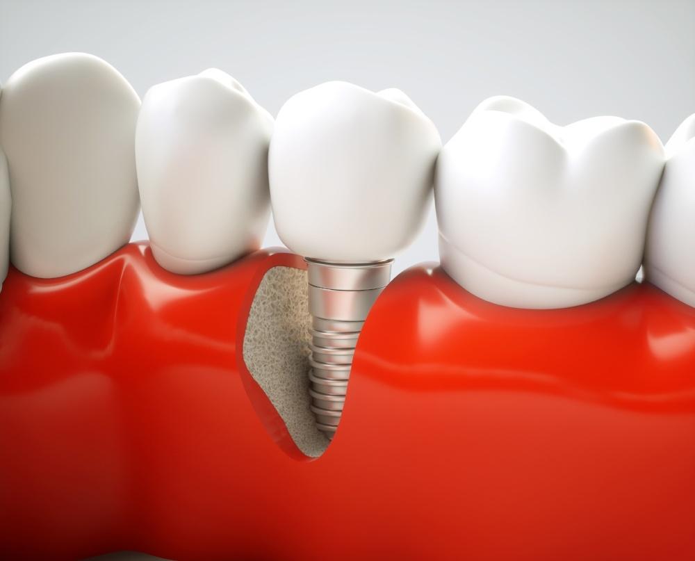 dental implant dentist dr linger