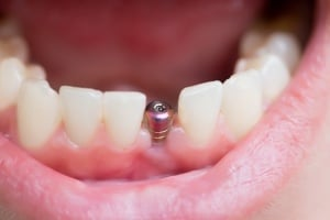 options for replacing all of your teeth, dental implants