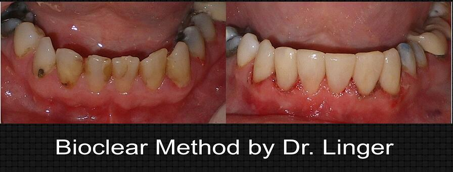 bioclear lower anterior