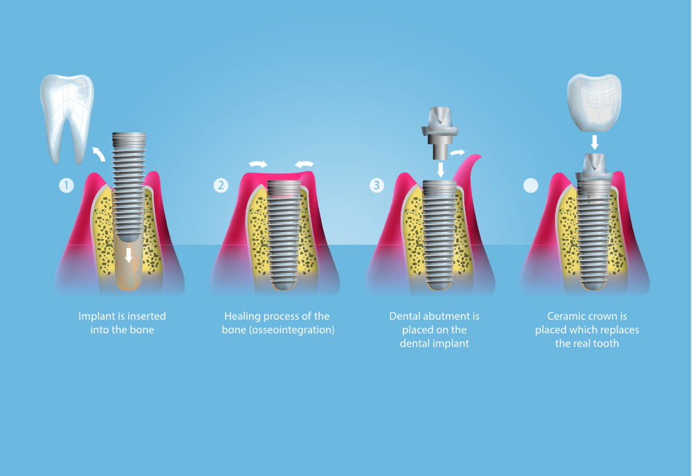 should you consider dental implants