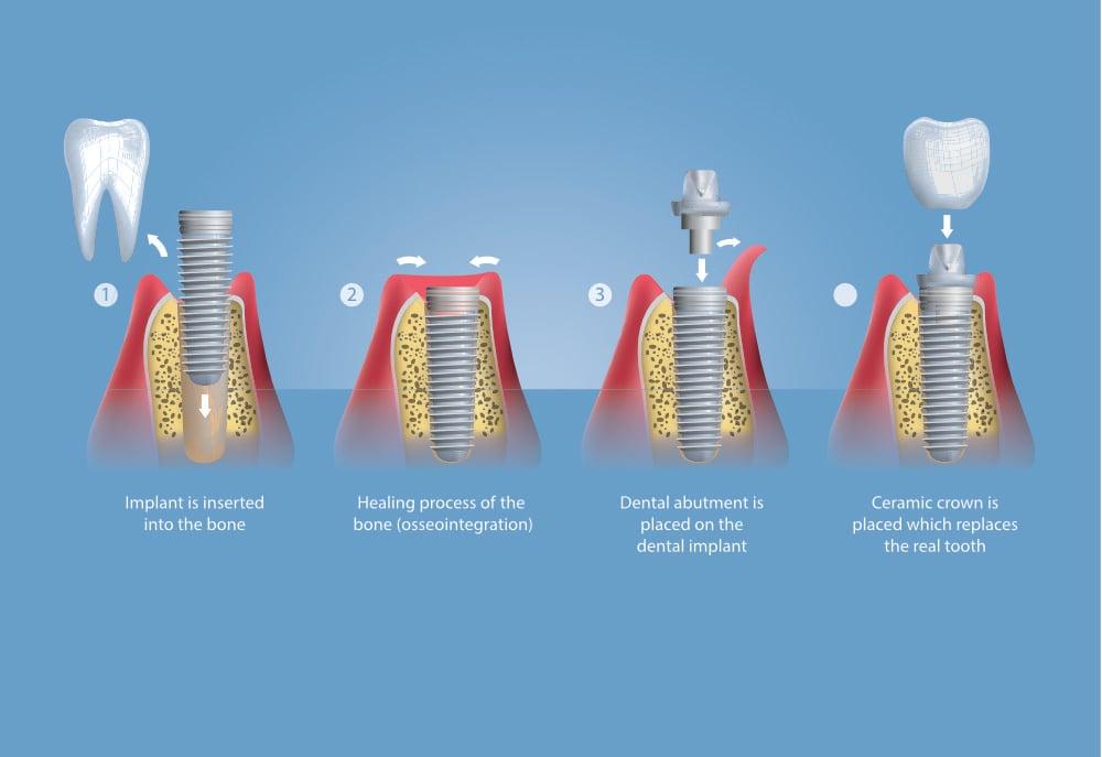 should you consider dental implants