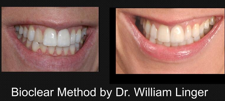 Bioclear Method by Dr. Linger, Charlotte, NC