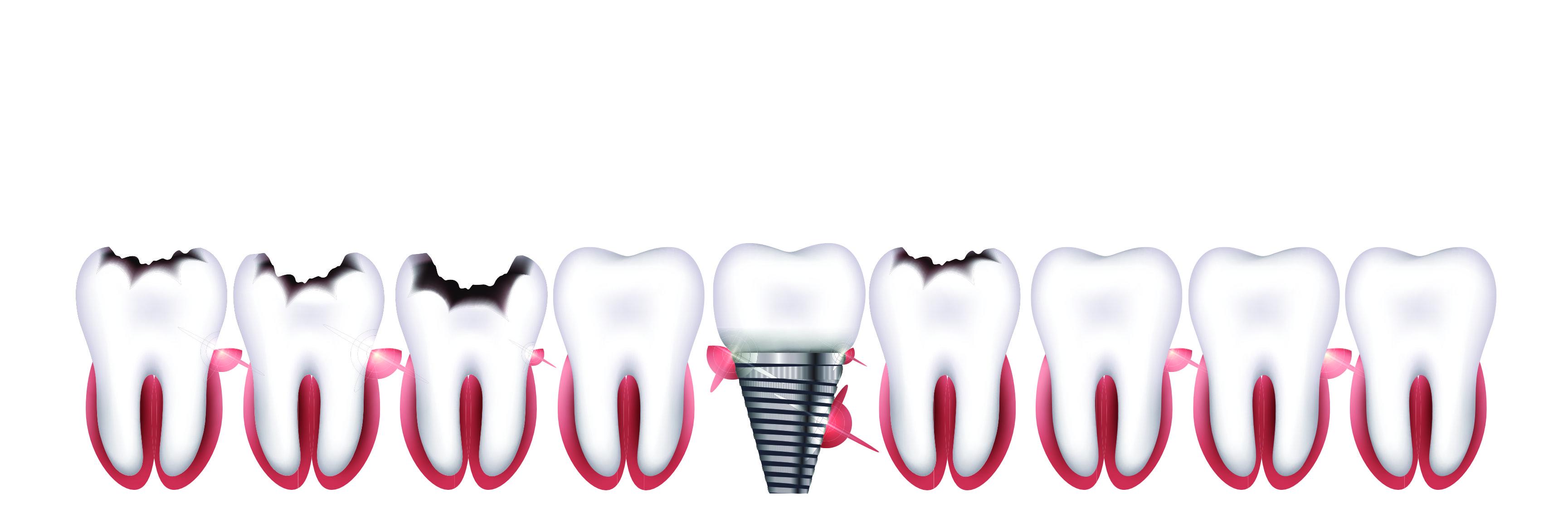 replacing your teeth