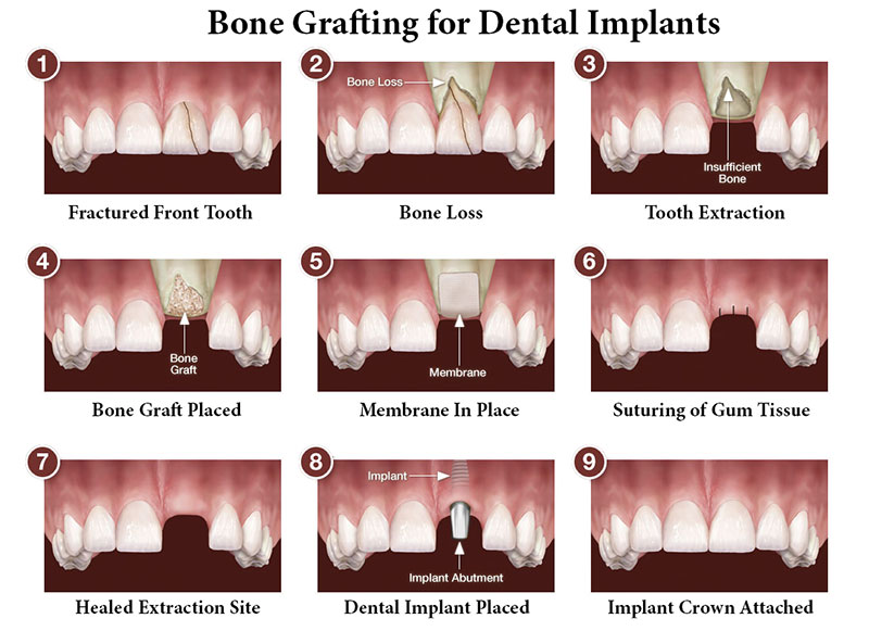 Bone Grafting William Linger Dds Magd